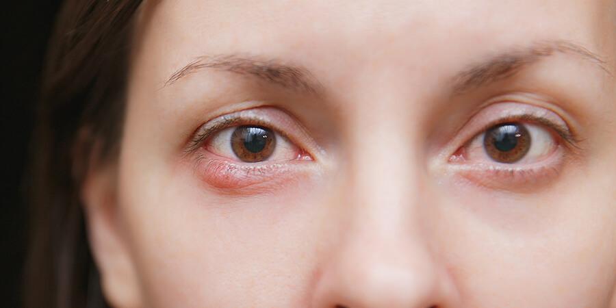 Eye cyst Treatment