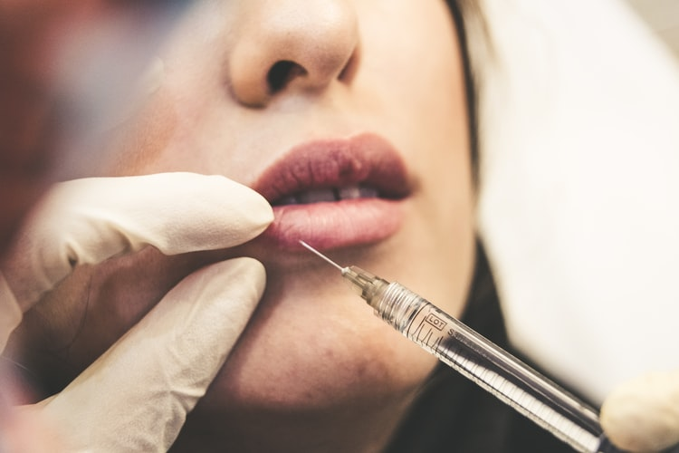 POST CARE FOR INJECTED LIPS- EVERYTHING TO AVOID