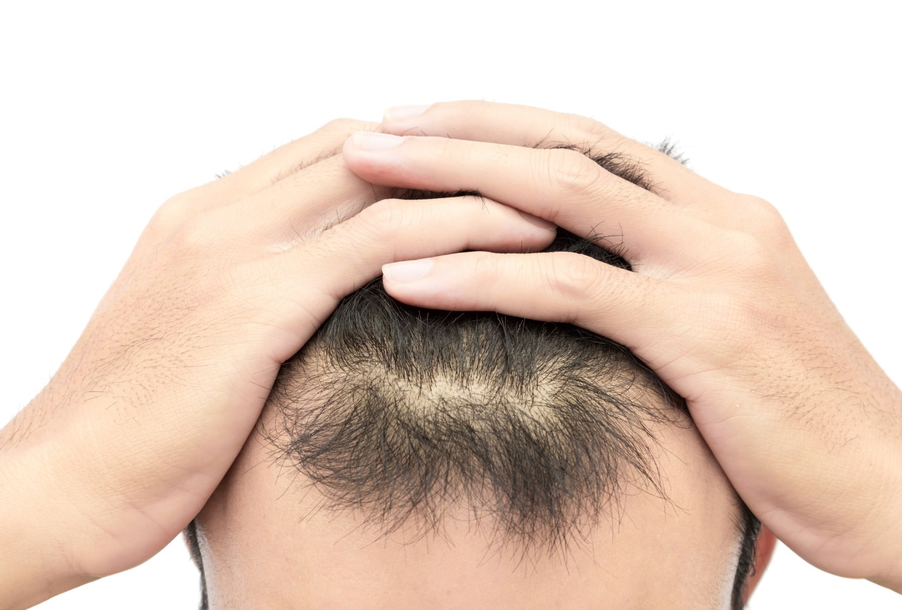 How Long Does the Best Scalp Micropigmentation Last
